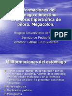Tema 45. Malformaciones del estómago e intestino. Estenosis pilórica. Megacolon aganglionico
