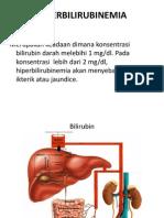 HiperbilirubinemiaIKTERUS