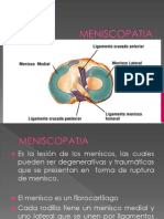 MENISCOPATIA