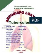 Aaa Tuberculosis Pulmonar Arma