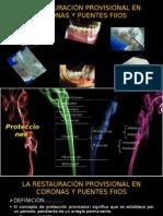 La RestauraciÓn Provisional en Coronas y Puentes Fijos