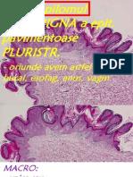 Epit Carcinoma