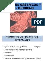 Cancer Gastrico Grupo 2