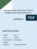 Ppt - Tetralogy of Fallot