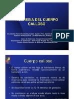 Agenesia Cuerpo Calloso