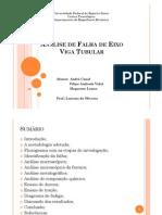Analise de Falha de Eixo Viga Tubular