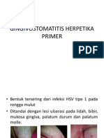 Gingivostomatitis Herpetika Primer
