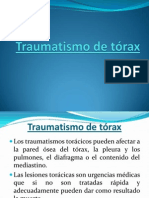 Traumatismo de tórax