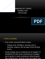 Gambaran Ro Toraks Normal Dan Patologis