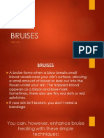 First Aid - Bruise