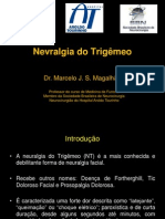 NEVRALGIA DO TRIGÊMEO