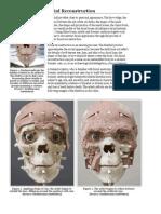 Facial Reconstructions