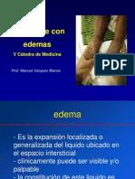 2013-03!06!01. El Paciente Con Edemas