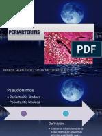 Periarteritis