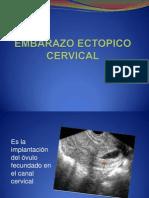 Embarazo Ectopico Cervical 1