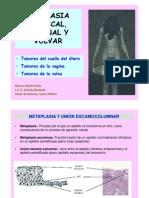 15 Ca Cérvix Vagina Vulva A DIAPO(1)