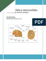 Hidrocefalia y Microcefalia