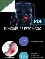 Tumores de Estomago 1