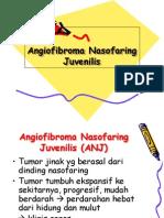 AngioFibroma NasoFaring Juvenile.ppt
