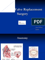 Cardiac Valve Replacement Surgery