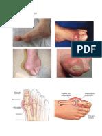 Gambar Gout Lampiran