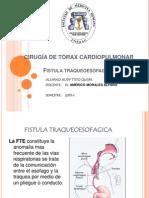 Fistula Traqueoesofagica Final
