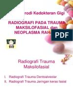 Radiografi Pada Trauma Neoplasma
