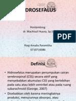 92212822-Hidrosefalus