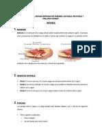 Enfermedades Del Sistema Reproductor Femenino