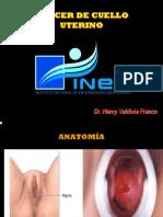 Cáncer de cuello uterino
