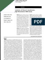 Neuroanatomy of Down's Syndrome