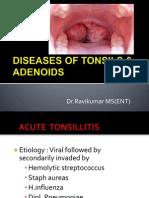 Adenotonsillitis New
