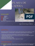 Dispalsia de Cadera
