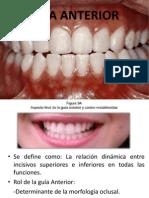 Diapositivas de Oclusion