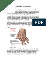dermatita de staza venoasa tratament varice