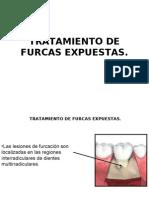 protesis  furcas