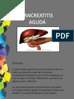Pancreatitis Agudaaaaaaaaaa