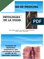 Patologías de la Vulva