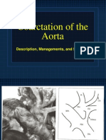 Coarctation+of+the+Aorta+ +Managements+and+Sequelae+ +Dr.+Gord+Mack+ +June+13.2006