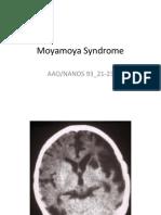 Moyamoya Syndrome PowerPoint