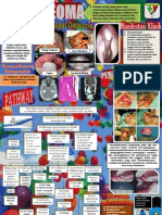 Poster Osteoma