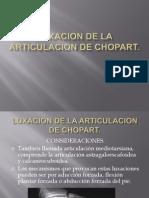 Luxacion de La Articulacion de Chopart
