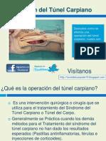 Operación del tunel carpiano