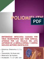 Polio_AR