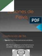 Lesiones de Pelvis