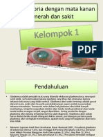ppt glaukoma akut