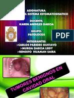patologia EXPOSICION DE TUMORES BENIGNOS EN CAVIDAD ORAL.pdf