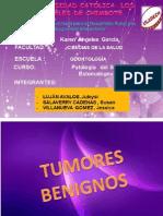 Tumores Malignos y Benigno