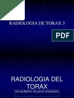 Radiologia de Torax