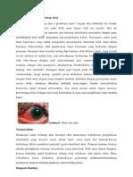 Glaukoma Sudut Tertutup Akut
